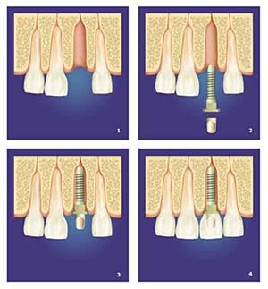 implantologie – Zahnimplantate in der Zahnarztpraxis Essen – Zahnarzt Essen