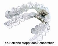 Eine TAP-Schiene zur Schnarchtherapie bei leichteren Fällen von Schlafapnoe von Ihrer Zahnarztpraxis in Essen.